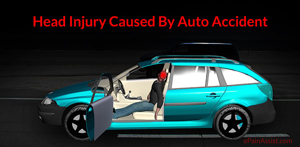 Head Injury Caused By Auto Accident