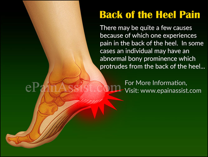 Back of the Heel Pain: What Can Cause Pain in the Back of the Heel?
