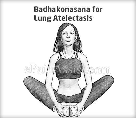 Badhakonasana for Lung Atelectasis