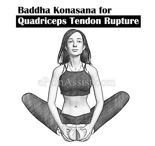 Yoga Badhakonasana for Quadriceps Tendon Rupture