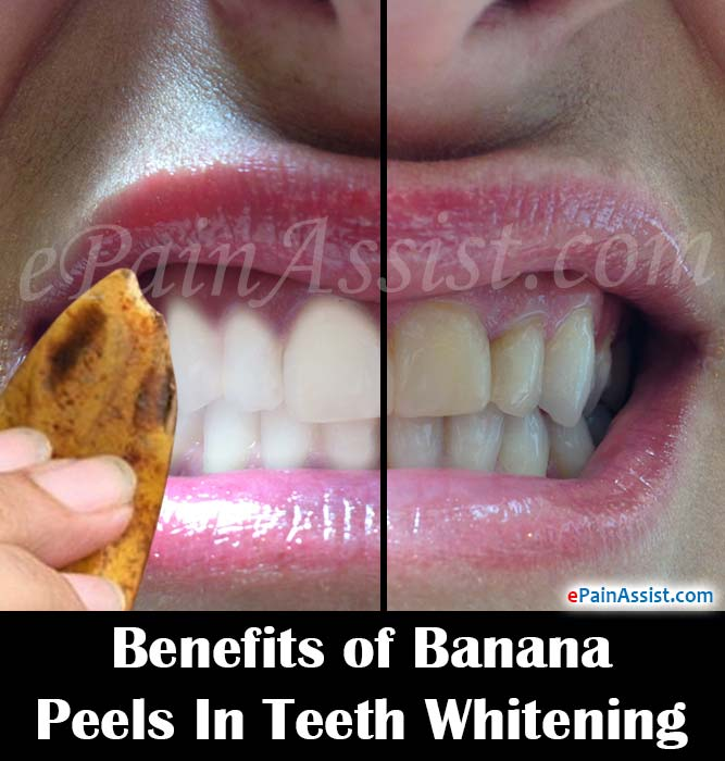 All About Banana Skin For Teeth Whitening Cheap Way To Whiten