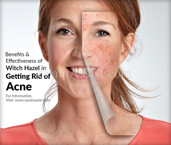 Benefits & Effectiveness of Witch Hazel in Getting Rid of Acne