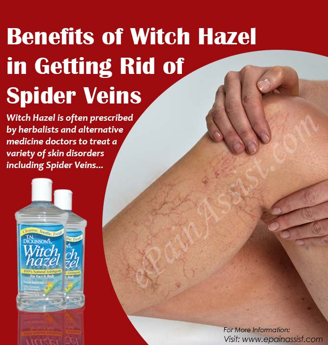 Benefits of Witch Hazel in Getting Rid of Spider Veins