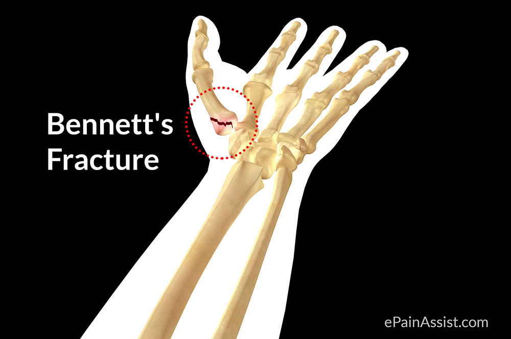 Thumb Pain Caused By Bennett's Fracture