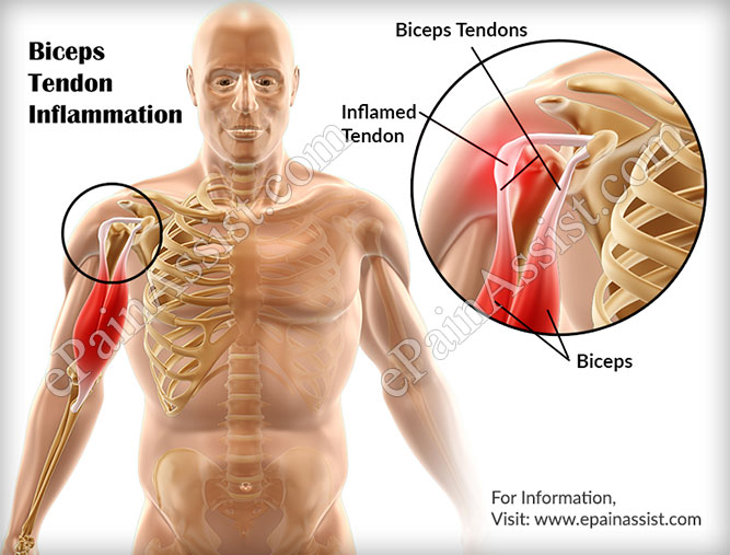 Biceps Tendon Inflammation
