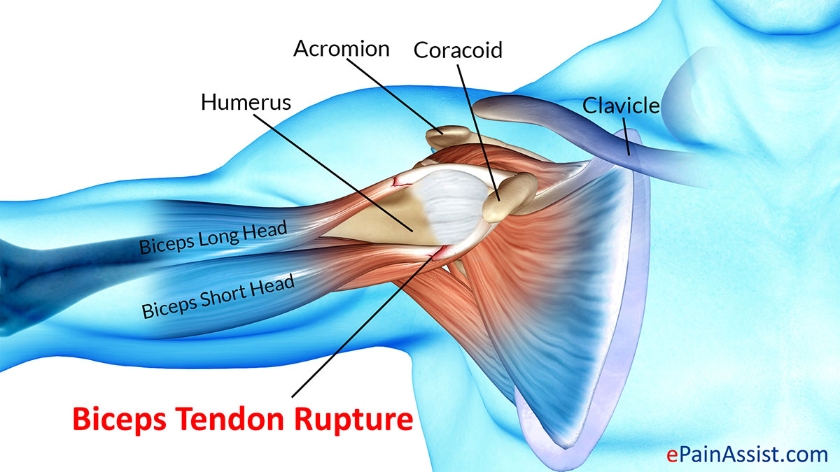Biceps Tendon Rupture: Treatment, Exercise, Types, Causes