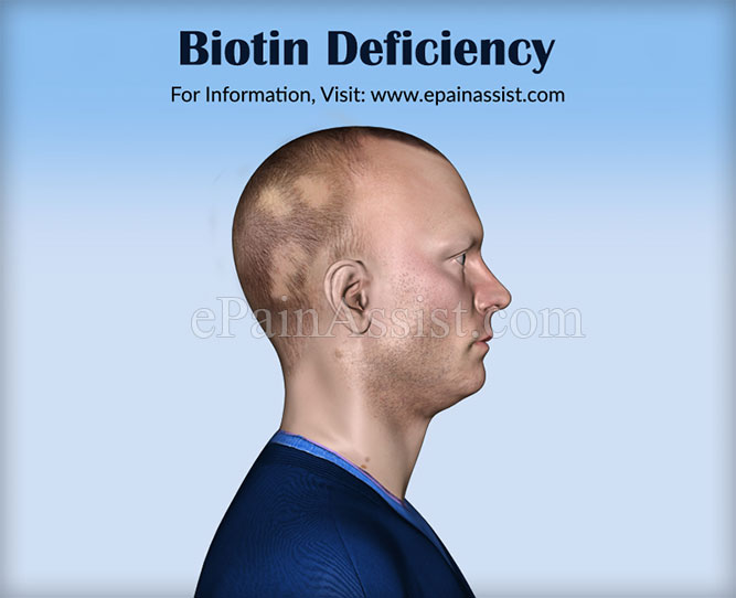 Biotin Deficiency