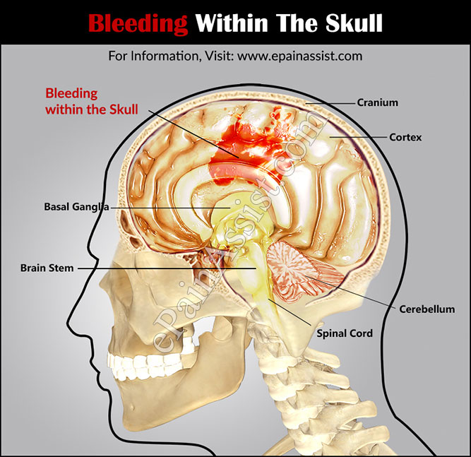 Bleeding Within the Skull