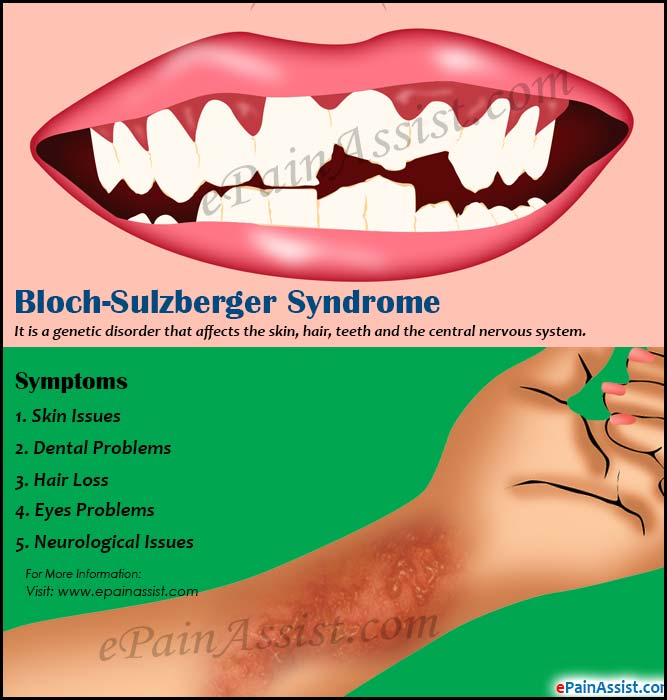 Bloch-Sulzberger Syndrome