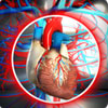 Cardiogenic Shock: Definition, Causes, Risk Factors, Signs & Symptoms, Investigations, Treatment, Prevention