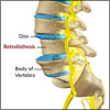 4 Exercises for Retrolisthesis