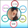 6 Home Remedies to Get Rid of Swimmer's Ear