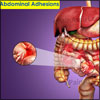 Abdominal Adhesions: Causes, Symptoms, Diagnosis, Treatment, Prevention, Diet