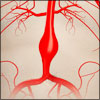 Abdominal Aortic Aneurysm: Pathophysiology, Causes, Risk Factors, Signs, Symptoms, Tests, Treatment