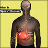 Alpers' Disease: Causes, Symptoms, Treatment, Survival Rate, Pathophysiology, Complications