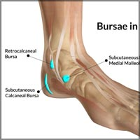 Ankle Joint Bursitis: Causes, Symptoms, Treatment-Conservative, PT, NSAIDs, Surgery