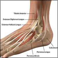 Ankle Joint Tendonitis