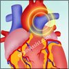 Aortic Dissection: Types, Causes, Symptoms, Treatment, Survival Rate, Prognosis, Complications, Epidemiology