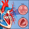 Aortic Stenosis: Causes, Symptoms, Treatment, Prognosis, Pathophysiology