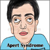 Apert Syndrome: Treatment, Prognosis, Life Expectancy, Causes, Symptoms, Epidemiology