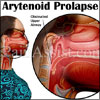 Arytenoid Prolapse: Types, Causes, Symptoms, Treatment