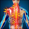 What Causes Back Muscle Spasms or Sprain & What is its Treatment, Prevention