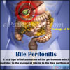 Bile Peritonitis: Causes, Symptoms, Treatment, Prognosis, Diagnosis