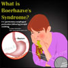 Boerhaave's Syndrome: Treatment & Management, Diagnosis, Pathophysiology, Occurrence Rate