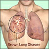 Byssinosis or Brown Lung Disease or Monday Fever: Causes, Signs, Symptoms, Diagnosis, Treatment, Prognosis