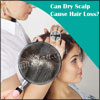 Can Dry Scalp Cause Hair Loss?