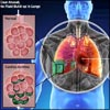 Cardiac Asthma: Causes, Symptoms, Treatment, Risk Factors