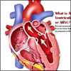 Causes & Symptoms of Arrhythmogenic Right Ventricular Cardiomyopathy or ARVC