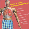 Causes & Symptoms of Lower Respiratory Tract Infection