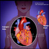Causes of Enlarged Aorta & Its Symptoms, Treatment