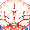 Cerebral Vasculitis: Causes, Symptoms, Treatment, Prognosis