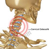 What is Cervical Facet Syndrome & How is it Treated?