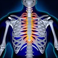 Costosternal Syndrome or Costochondritis or Chest Wall Pain