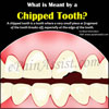 Chipped Tooth: Why Does a Tooth Chip off & How to Fix it?