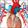 Coarctation of the Aorta & Hypertension, Pregnancy