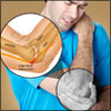 Compressed Ulnar Nerve: Symptoms, Treatment, Recovery Time, Diagnosis
