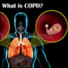 COPD: Causes, Signs, Symptoms, Treatments, Stages, Life Expectancy, Surgery, Home Treatment