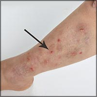 skin diseases information center: acne vulgaris, crest syndrome, Cephalic Vein