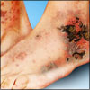 Cutaneous Vasculitis: Causes, Signs, Symptoms, Treatment, Prognosis, Epidemiology
