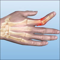 Dislocation of Hand, Thumb and Fingers