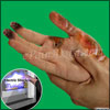 Electrical Injuries: Facts, Causes, Symptoms, First Aid, Treatments, Prevention