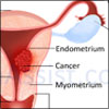 Endometrial Cancer or Uterine Cancer: Symptoms, Treatment- Radiation, Hormone Therapy