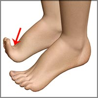 Foot Pain Information Center: Foot Cramps, Foot Joint Dislocation ...