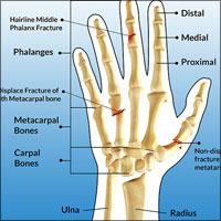 Fracture of Hand and Fingers