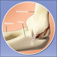 Fractured Elbow: Causes, Symptoms, Treatment, Recovery, Physical Therapy