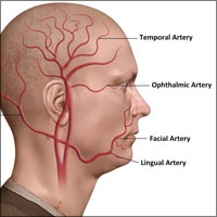 Giant Cell Arteritis or Temporal (Cranial) Arteritis